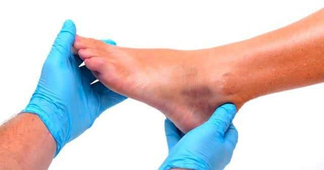 Ayak Ve Ayak Bileği Şişmesi Neden Olur?Sebepleri Tedavisi İçin Bitkisel Çözüm