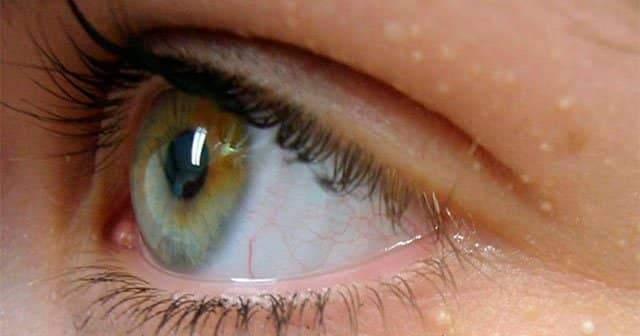 Gözlerin altında mavi halkalara neden olan nedir