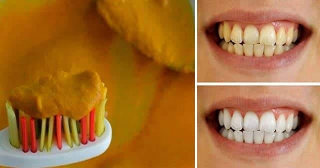 Zerdeçal Diş Beyazlatır mı? Zerdeçal İle Diş Beyazlatma Tozu Yapımı