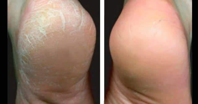 Topuk Çatlakları Neden Olur, Ayak Topukları Neden Çatlar Topuk Sertleşmesi Nasıl Geçer?