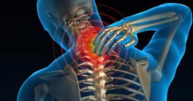 Boyun Kireçlenmesine Ne İyi Gelir Nasıl Geçer? Bitkisel Tedavi