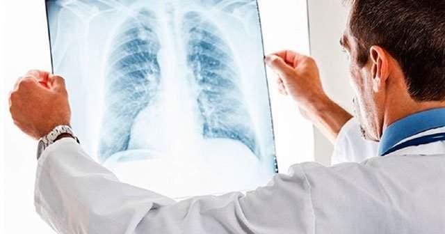 akciğer nodülü ile ilgili görsel sonucu