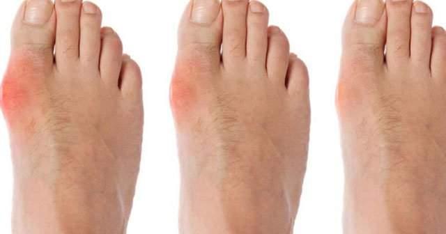 Halluks Valgus Ameliyatsız Tedavisi Ayağın Yan Tarafında Kemik Çıkması