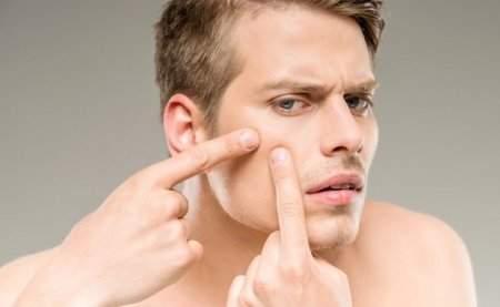 Sivilce İzleri Lekesi Yarası Nasıl Geçer? Doğal Yöntemler Maske Tarifleri