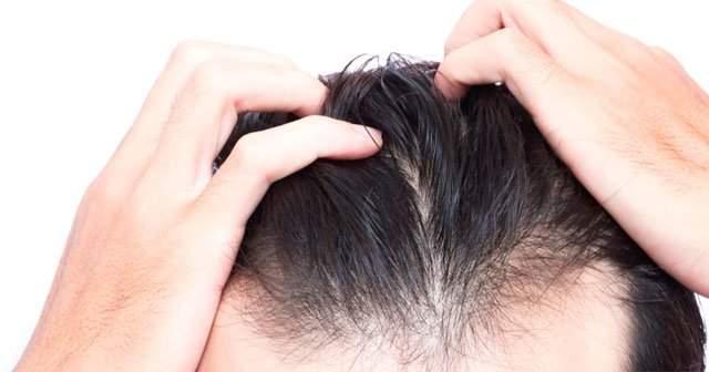 Kadınlarda, Bayanlarda Erkek Tipi Saç Dökülmesi Bitkisel Tedavisi