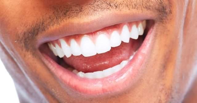 Sirke, Karbonat, Tuz İle Diş Beyazlatma, Sirke Diş Beyazlatır mı?