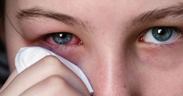 Göz Kanlanması Kızarıklığı Gözde Kan Toplanması Nasıl Geçer Damla Ve Bitkisel Çözüm