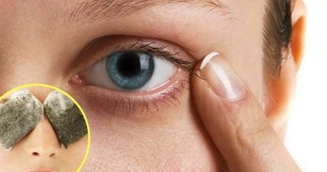 şalazyon Nedir Göz Kapağında Kist Belirtileri Nasıl Geçer Tedavisi