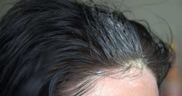 Sığır İliği Saç Maskesi Kullananlar Memnun mu? Sığır İliği Kürü Saç Çıkardı