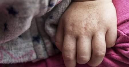 Kızıl Hastalığına Ne İyi Gelir Kaşıntı Nasıl Geçer Bitkisel Tedavi