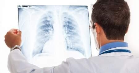 Akciğerde Sıvı Birikmesi Tedavisi Ne Kadar Sürer Bitkisel Tedavisi