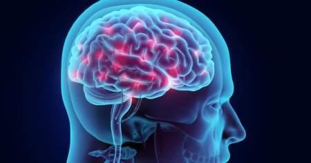 Hipoksik İskemik Ensefalopati Nedir Ensefalopati Sendromu Ne Demek