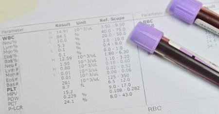 Tam Kan Sayımı CBC Nedir Tam Kan Sayımında Nelere Bakılır?