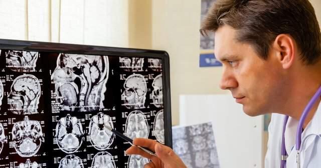 Beyinde Anevrizma Nasıl Anlaşılır Tedavisi Ameliyatı