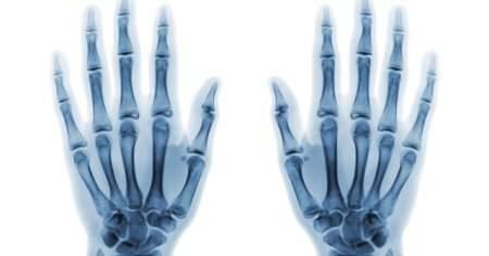Kırık Parmak Nasıl Anlaşılır Belirtileri Nedenleri Tedavisi