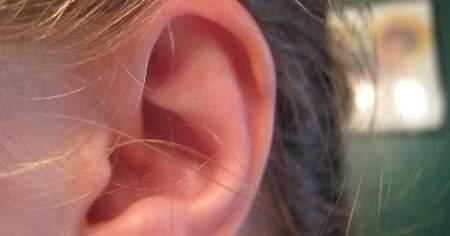 Kulak Kireçlenmesi Bitkisel Tedavisi Ne İyi Gelir Nasıl Geçer
