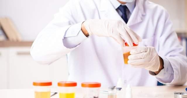 İdrarda Bakteri Sayısı Kaç Olmalı İdrarda Bol Bakteri Görülmesi