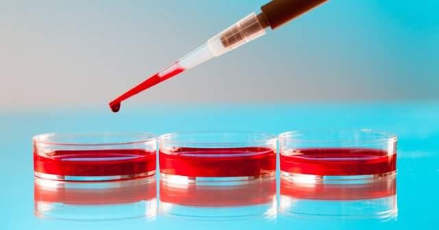 Kan Tahlilinde Hamilelik Nasıl Anlaşılır Gebelik Kanda Ne Zaman Çıkar