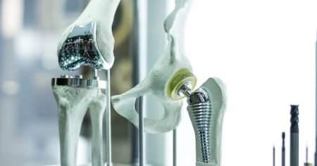 Diz Protezi Ameliyatı Sonrası Bacakta Morarma Şiddetli Ağrı
