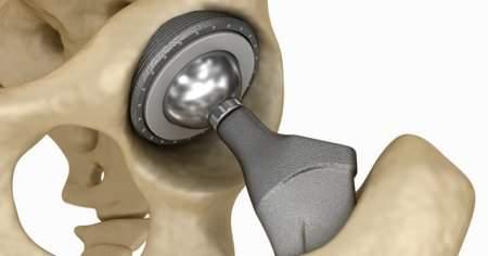 Kalça Protezi Sonrası Kasık Ağrısı Bacakta Şişlik Olur mu?