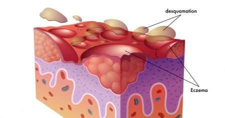 Dishidrotik Dermatit Dishidroz Nedir Nasıl Geçer