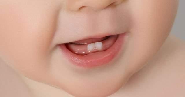 Diş Ateşi Nasıl Anlaşılır Nasıl Düşürülür Uzman Önerileri