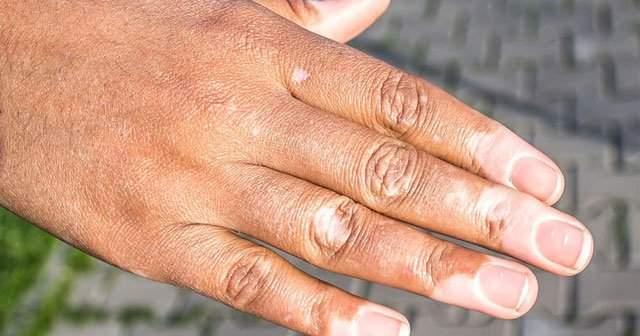 Deri Üzerinde Beyaz Lekelerin Olduğu Cilt Problemi Vitiligo Nedir