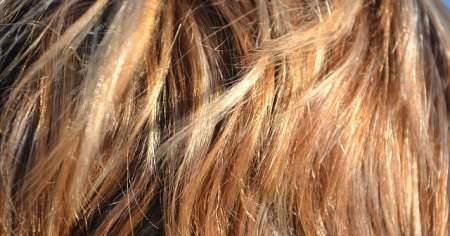 Saç Diplerim Çok Kaşınıyor Ne Yapmalıyım Bitkisel Tedavisi