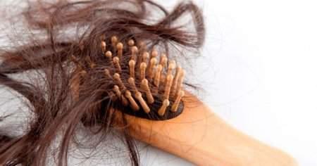 Seboreik Dermatit Saçta Yağlı Egzama Saç Döker mi