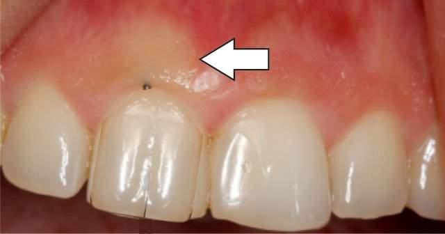 Diş Etinde Beyaz Şişlik Tedavisi İçin Bitkisel Çözümler