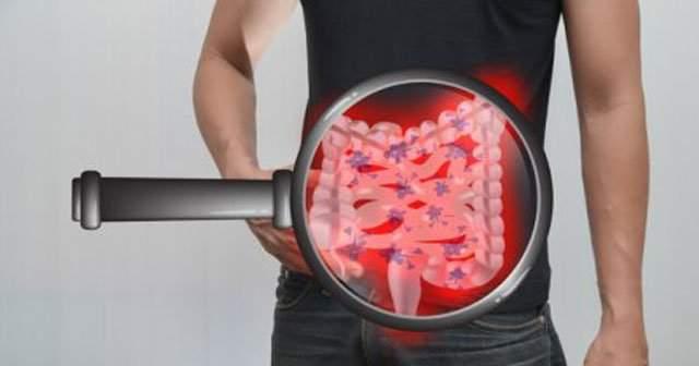 Midede İntestinal Metaplazi İyileşirmi ve Neden Olur