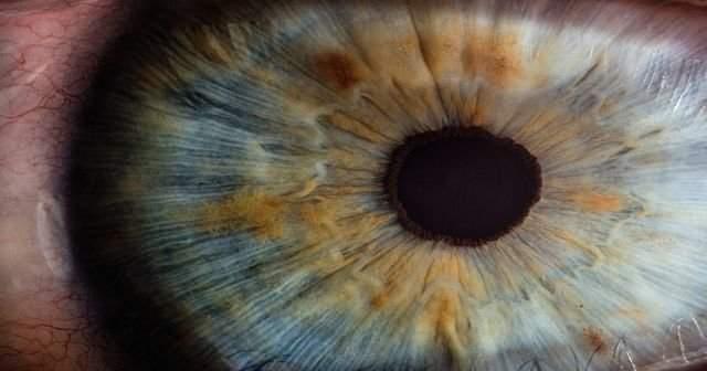 Göz Bebeklerinin Farklı Büyüklükte Olmasının Nedenleri Nelerdir
