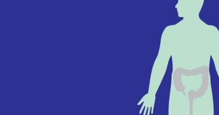 Bağırsak Tıkanıklığı İntestinal Obstrüksiyon Belirtileri Neden Olur
