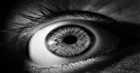 Claude Bernard- Horner Sendromu Ne Demektir Tedavisi Nasıldır