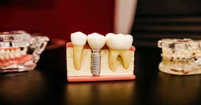 Dişlerin kırılmasının 7 nedeni ve tedavi yöntemleri